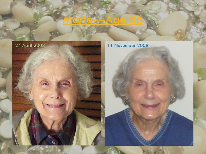 Marie—Age 86