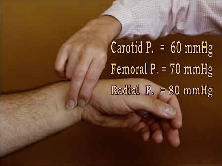 Carotid P.  =  60 mmHg