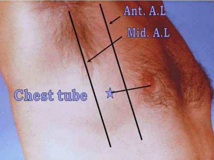 Ant. A.L