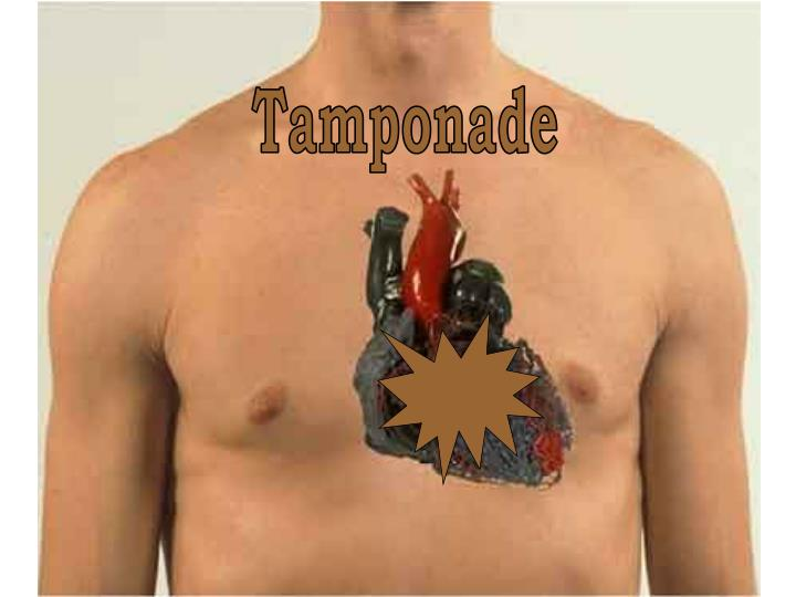 Tamponade