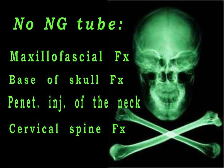 No NG tube:
