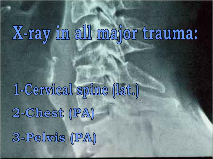 X-ray in all major trauma: