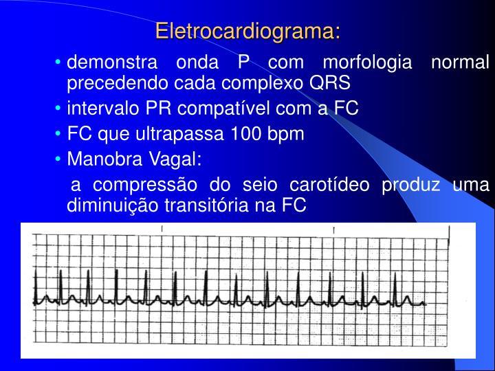 Eletrocardiograma: