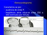 eletrocardiograma1