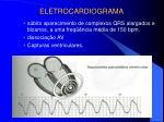 eletrocardiograma4