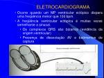 eletrocardiograma6