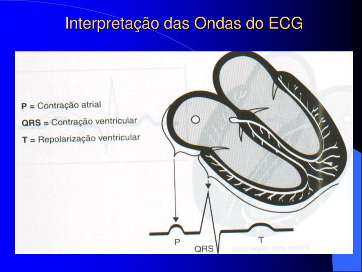 Interpretação das Ondas do ECG