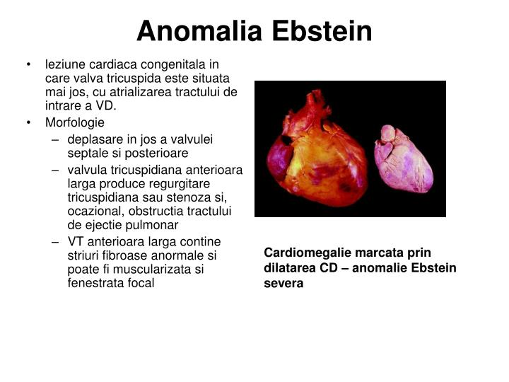 Anomalia Ebstein