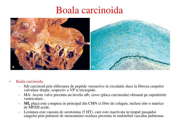 Boala