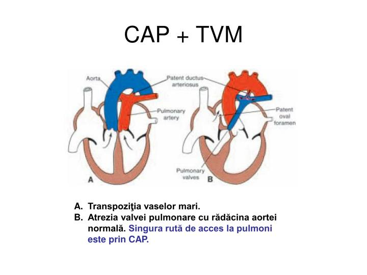 CAP + TVM