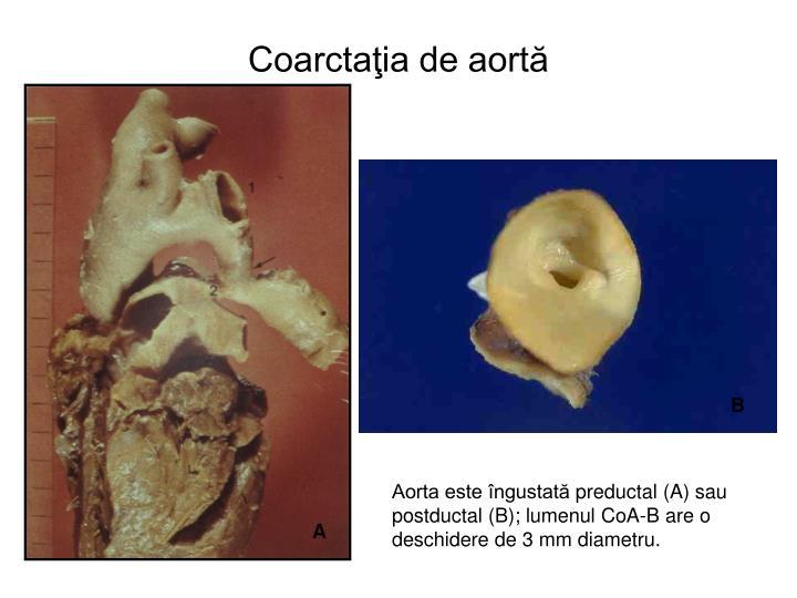 Coarctaţia de aortă
