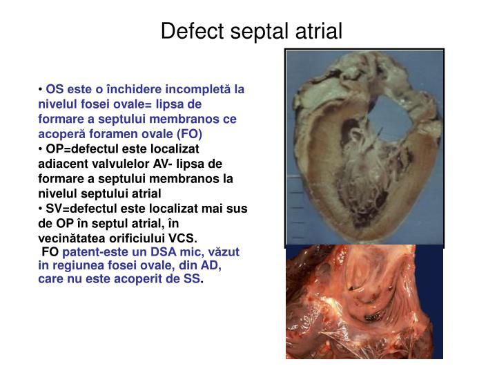 Defect septal atrial