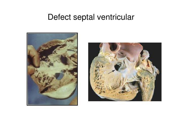 Defect septal ventricular