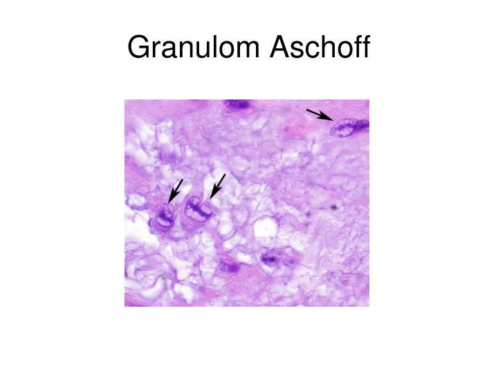 Granulom Aschoff