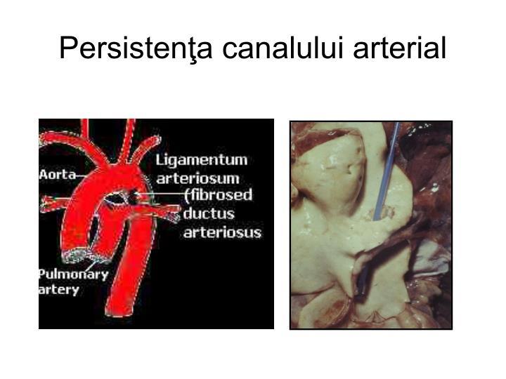 Persistenţa canalului arterial