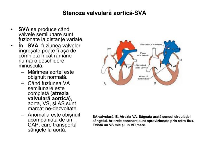Stenoza valvulară aortică