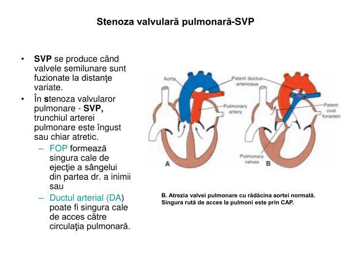 Stenoza valvulară pulmonară