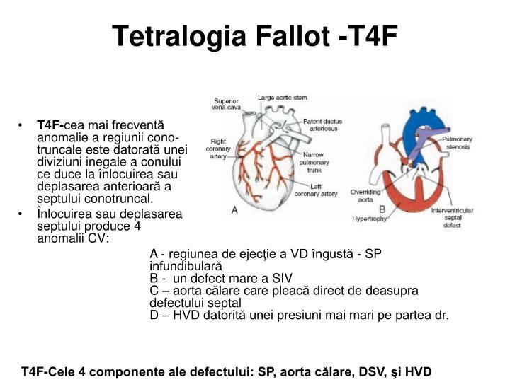 Tetralogia Fallot -