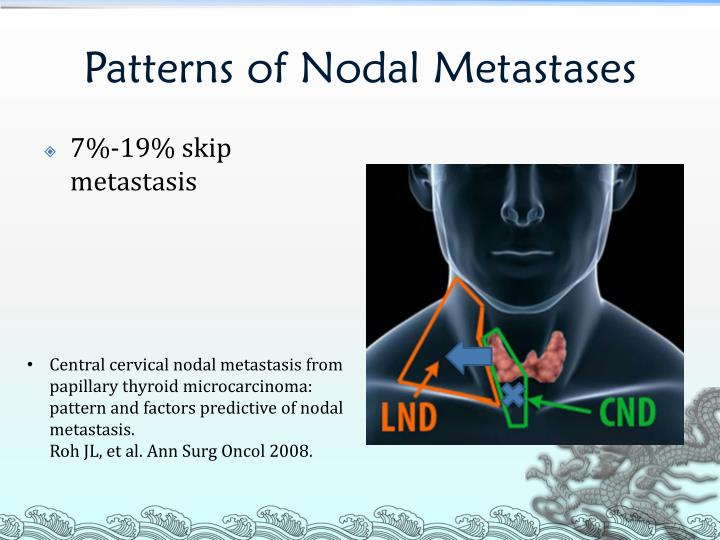 Patterns of Nodal Metastases