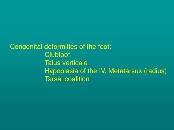Congenital deformities of the foot