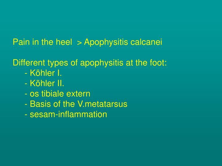 Pain in the heel  >