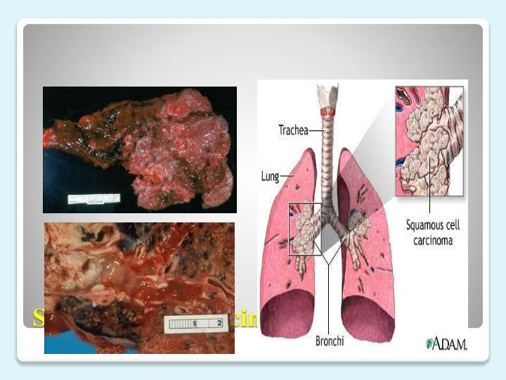 Squamous cell carcinoma of the lung