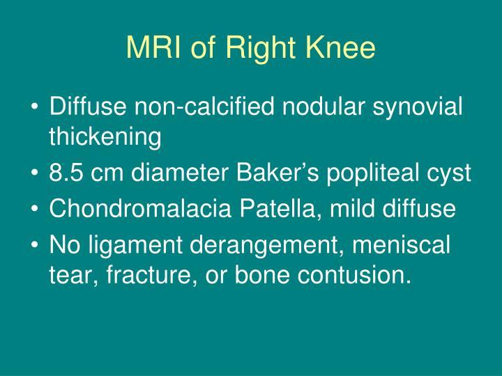 MRI of Right Knee