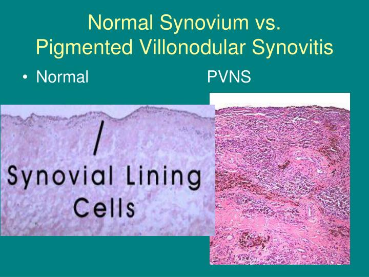 Normal Synovium vs.