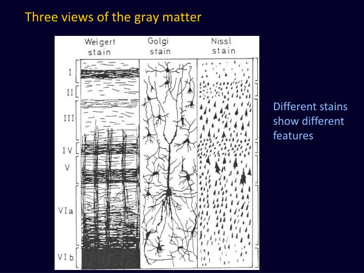 Three views of the gray matter