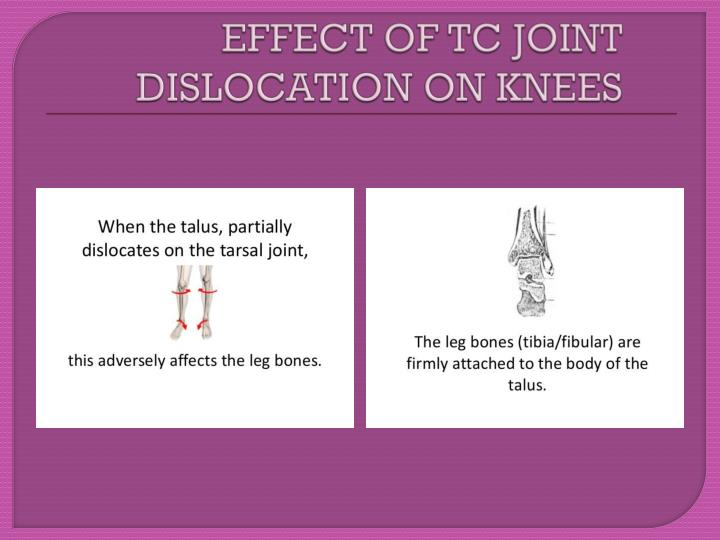 EFFECT OF TC JOINT DISLOCATION ON KNEES