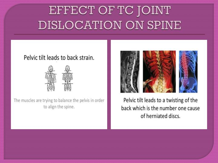 EFFECT OF TC JOINT DISLOCATION ON SPINE