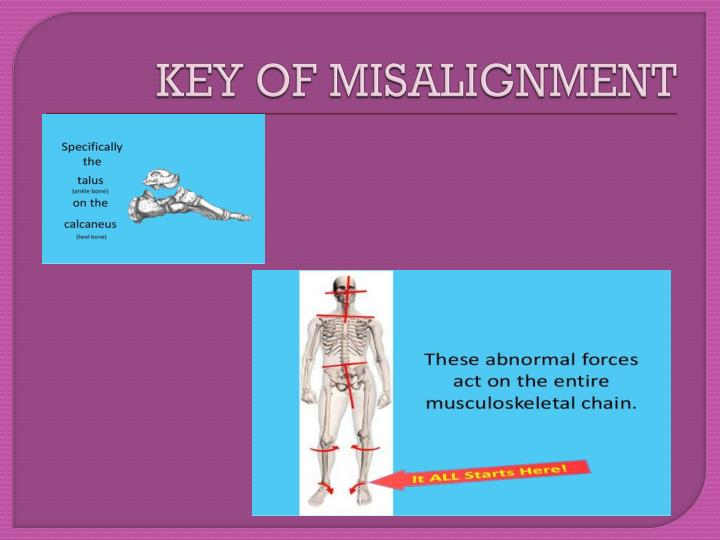 KEY OF MISALIGNMENT