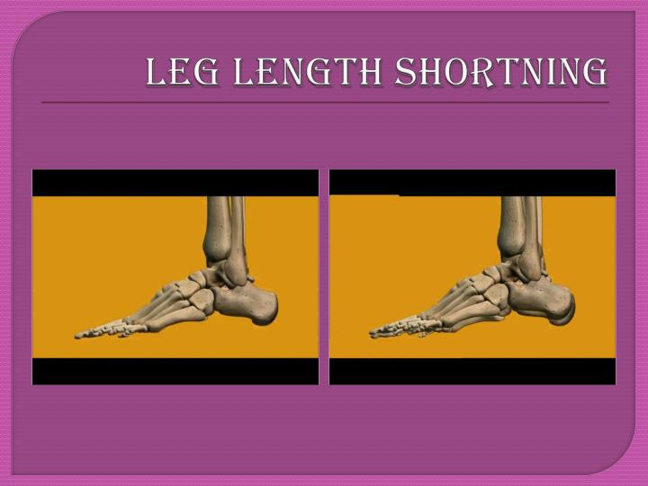 LEG LENGTH SHORTNING