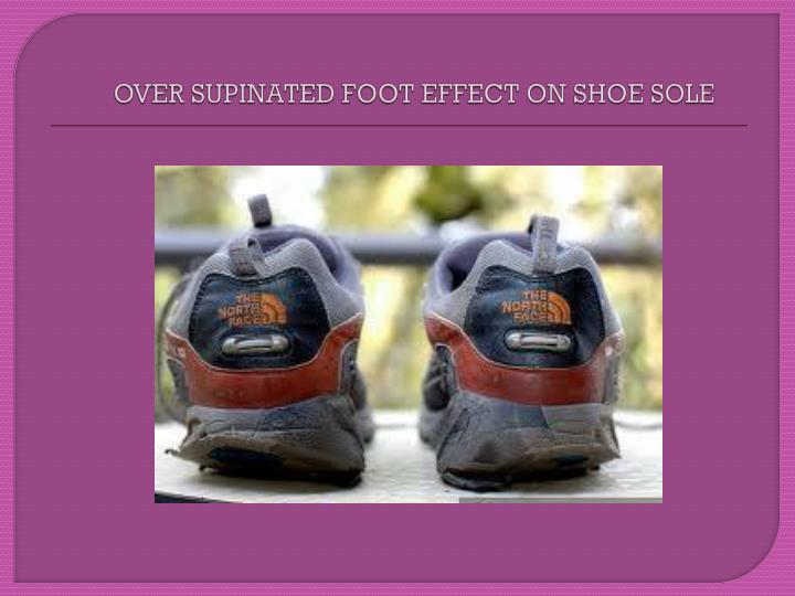 OVER SUPINATED FOOT EFFECT ON SHOE SOLE