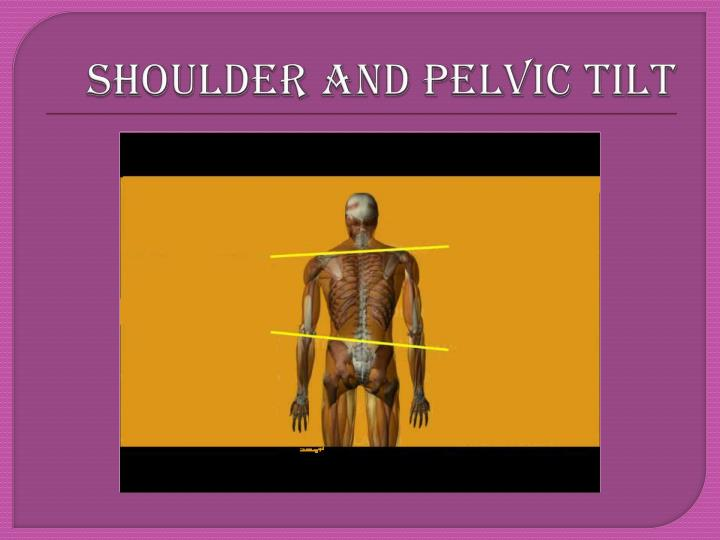 SHOULDER AND PELVIC TILT