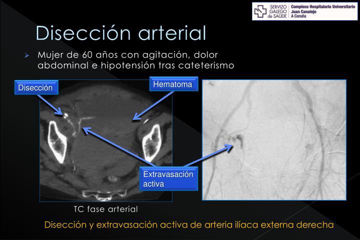 Disección arterial