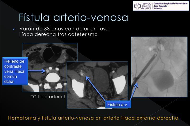 Fístula arterio-venosa