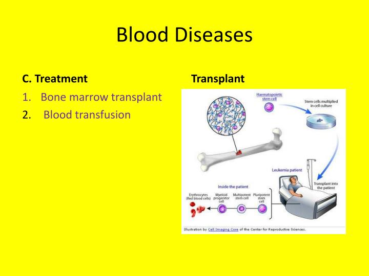 Blood Diseases