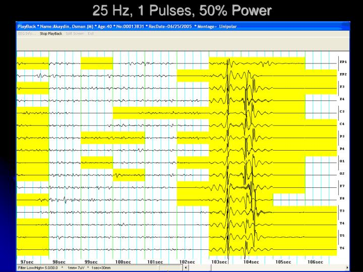 25 Hz, 1 Pulses, 50% Power