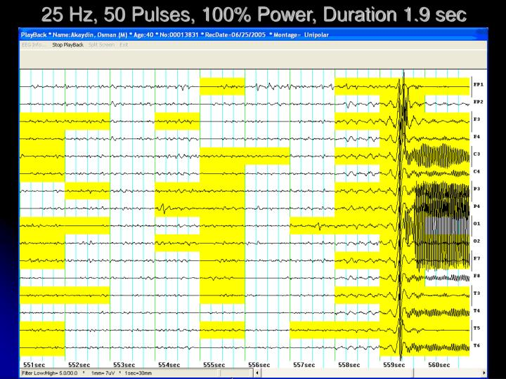 25 Hz, 50 Pulses, 100% Power, Duration 1.9 sec