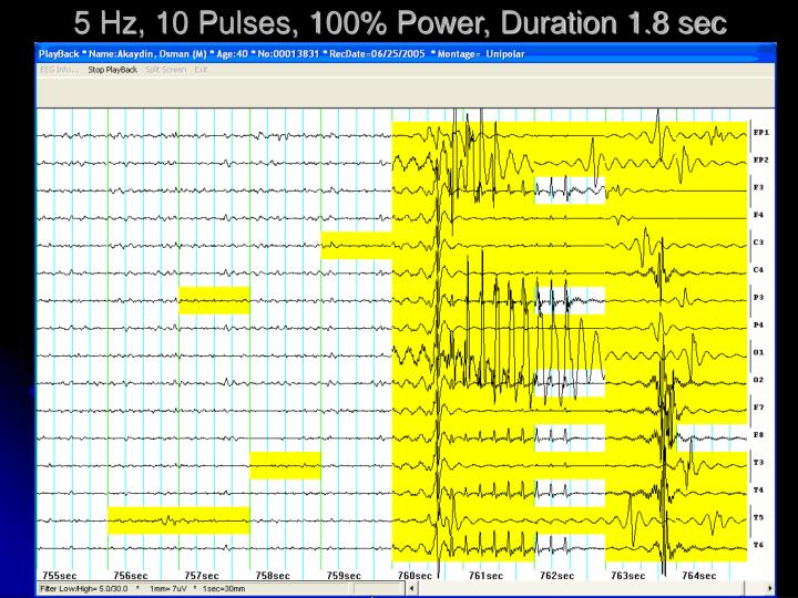 5 Hz, 10 Pulses, 100% Power, Duration 1.8 sec