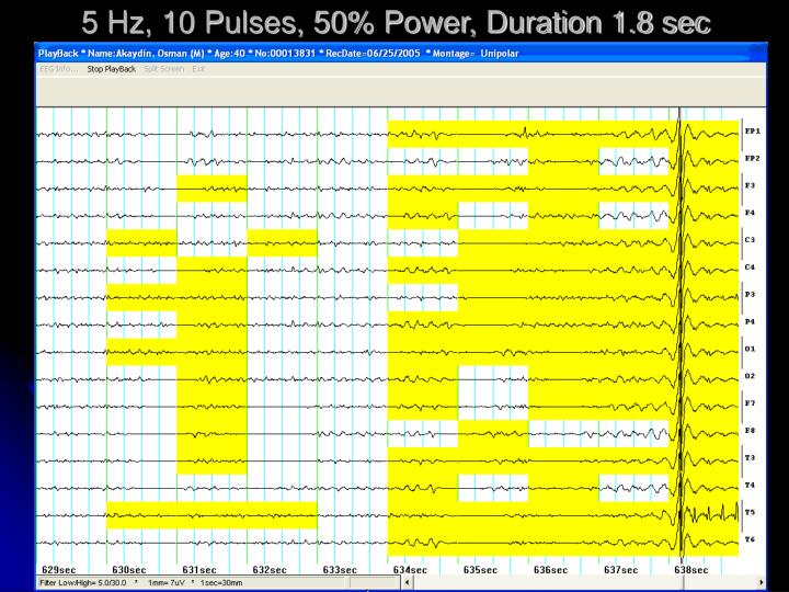 5 Hz, 10 Pulses, 50% Power, Duration 1.8 sec