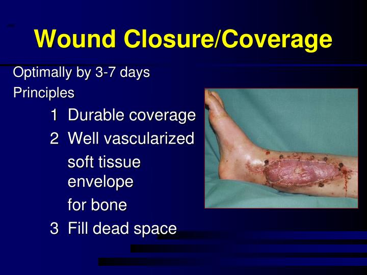 Wound Closure/Coverage