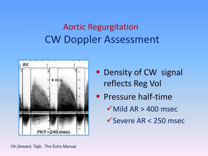 Aortic Regurgitation
