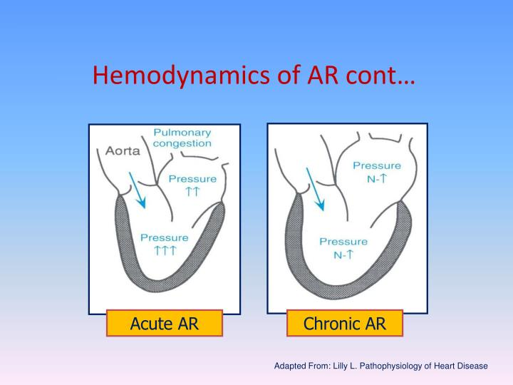 Hemodynamics of AR cont…