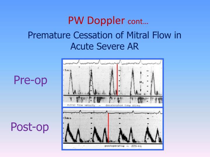 PW Doppler