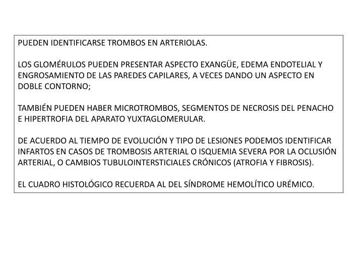 PUEDEN IDENTIFICARSE TROMBOS EN ARTERIOLAS.