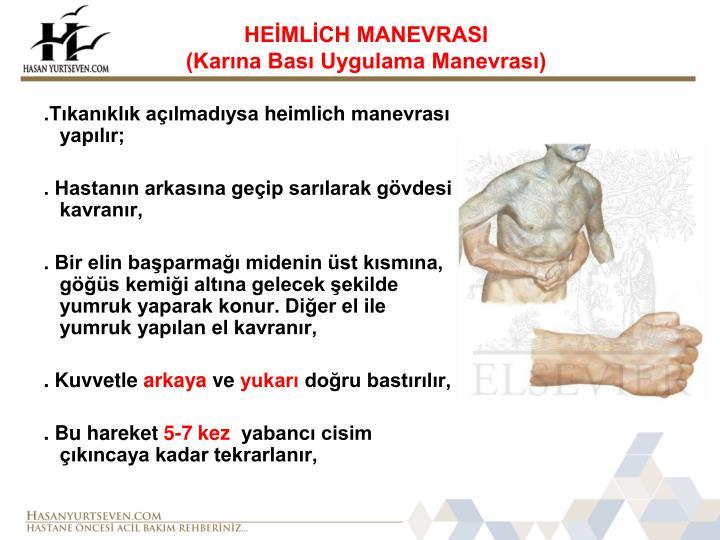 HEİMLİCH MANEVRASI