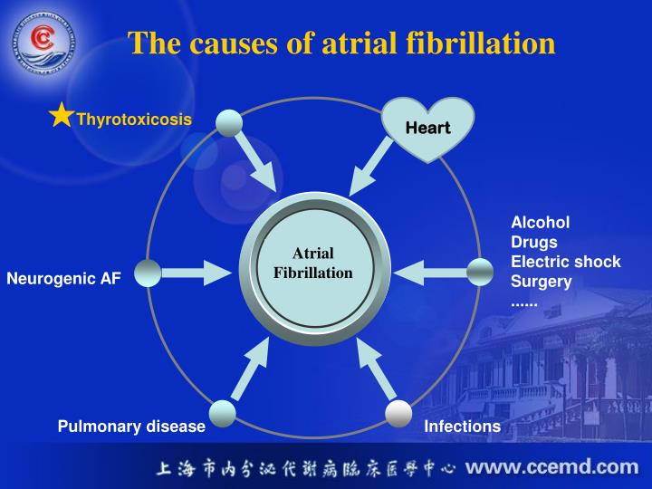 The causes of atrial fibrillation