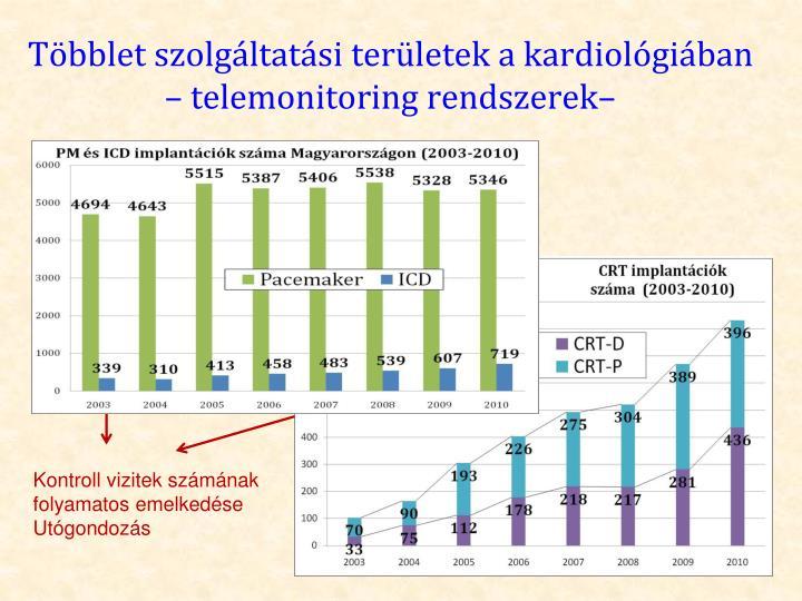 Többlet szolgáltatási területek a kardiológiában – telemonitoring rendszerek–